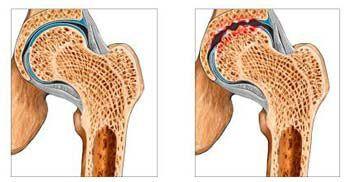 Дисфункции тазобедренных суставов