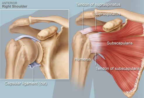 Как избавиться от боли в плечевом суставе питание восстановление хрящевой ткани суставов