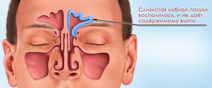 воспаление слизистой лобной пазухи
