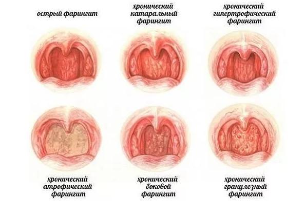 формы фарингита