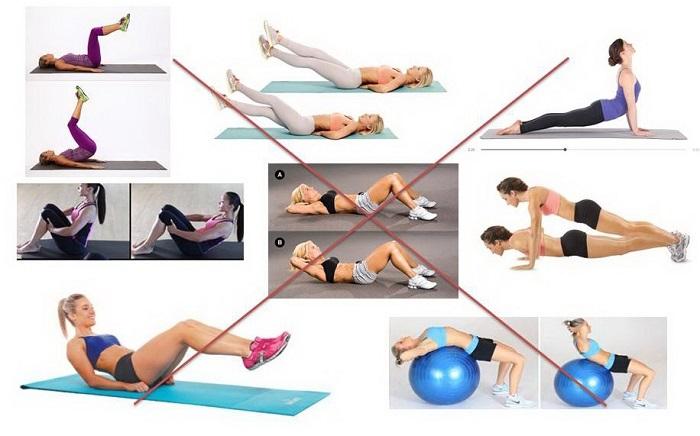 упражнения при диастазе, которые выполнять нельзя