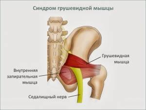 Боль в пояснице и ноге: синдром грушевидной мышцы - центр