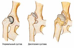 Откуда берется дисплазия тазобедренных суставов щелчок в тазобедренном суставе у ребенка 5 месяцев