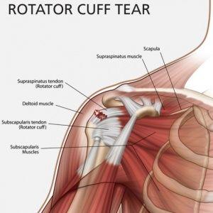 Хронические боли в плечевом суставе узи суставов омск