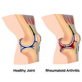 Ослабли суставы мениск коленного сустава препараты